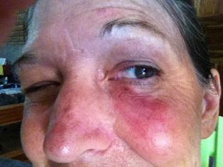 Cheri, MOG Director, with a black eye